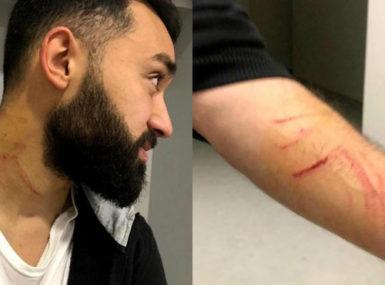 En Turquie, un footballeur est accusé d'avoir tailladé ses adversaires en plein match
