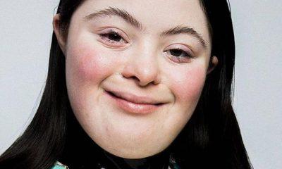 À 18 ans Ellie Goldstein, une jeune trisomique est devenue mannequin pour la célèbre marque Gucci