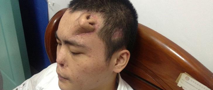 Des médecins chinois ont fait pousser un nez sur la tête de leur patient