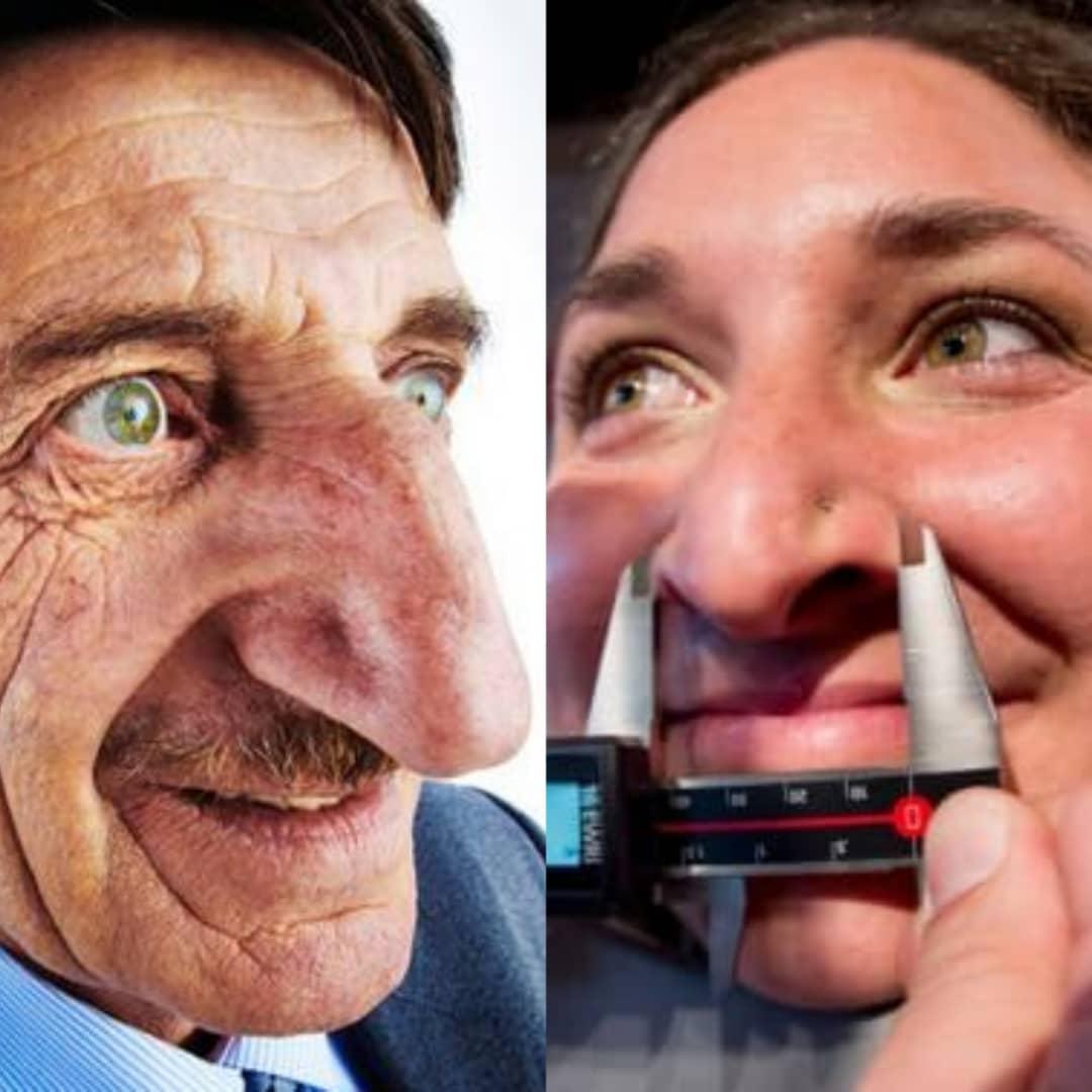 Voici l'homme et la femme ayant les plus gros nez